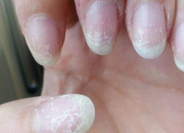 unhas-de-gel-podem-provocar-cancro-de-pele-750x501